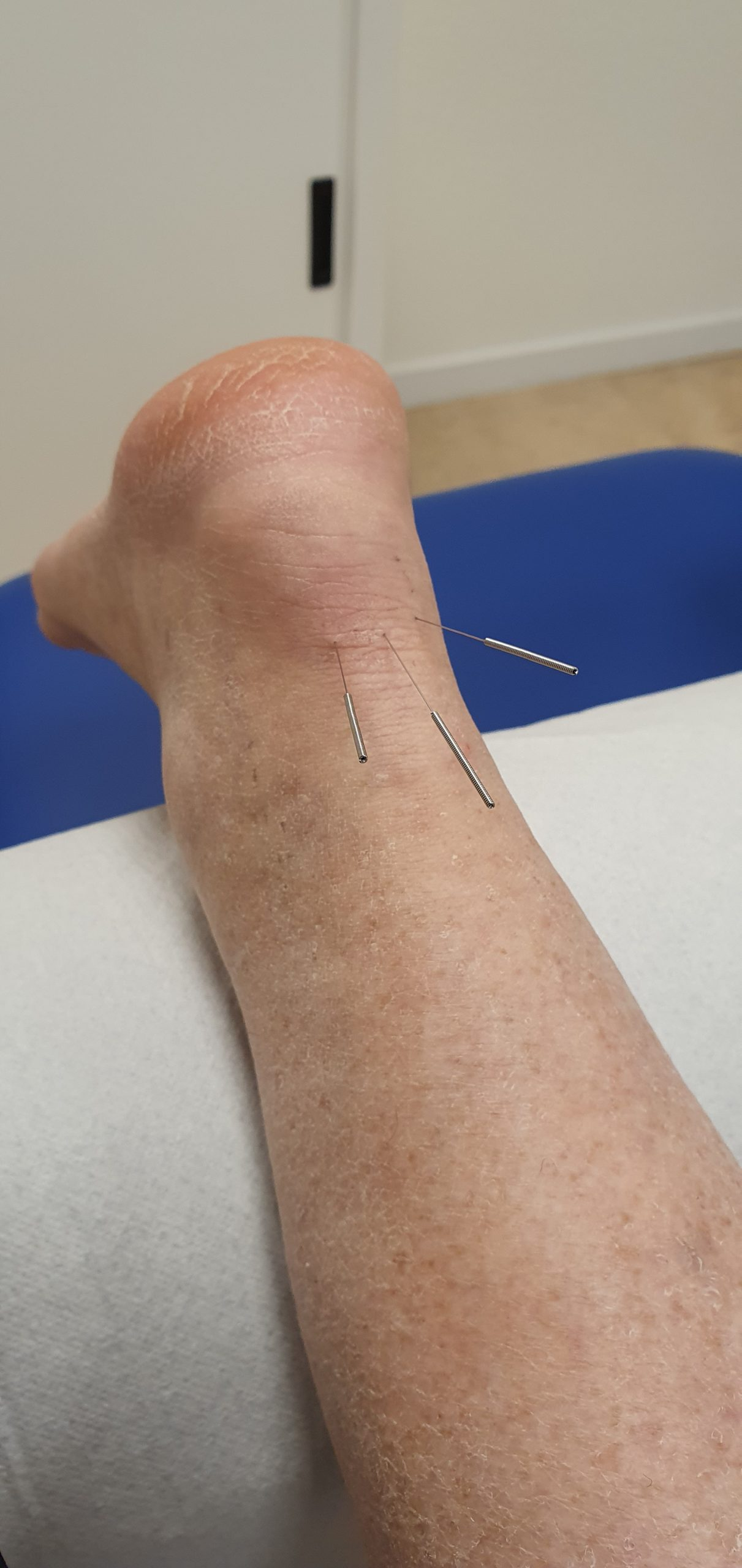 Dry Needling bij Achillespees klachten